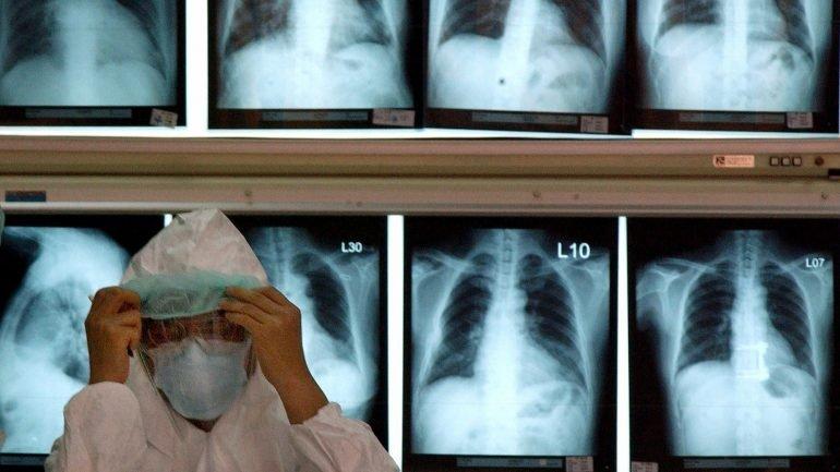 Portugal: são internadas cinco pessoas a cada hora com pneumonia